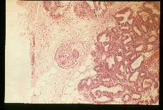 Alaria marcianae. Mesocercaria) stage in the connective tissue of mouse mammary gland. Low and high magnifications.