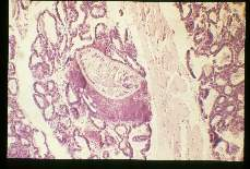 Alaria marcianae Mesocercaria in a pool of milk after the destruction of several alveoli in a mammary gland.