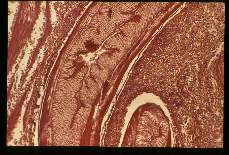Anisakis. Low and high power magnifications of worm in human stomach wall. Case from Holland