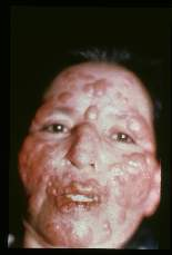 Leishmaniamexicana. Diffuse anergic cutaneous leishmaniasis in a 37 year old Mexican female. Disease started as an ulcer of the foot 17 years earlier.