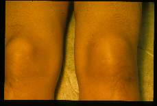 Loa loa Calabar swelling of knee in 38 year old geologist who worked in Zaire for 3 years.
