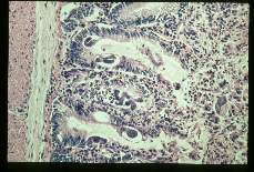 Strongyloides stercoralis. Eggs and larvae in intraepithelial tunnels of duodenal mucosa of Erythrocebus patas.