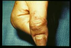 Cutaneous larval migrans Thumb.