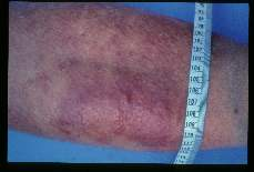 Wuchereria bancrofti. Cellulitis and elephantiasis of the right leg of seventy-seven year old female. An attack began four days earlier. Case acquired thirty years ago.