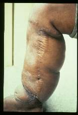 Wuchereria bancrofti. Medial aspect of right leg of thirty-three year old male. The case was acquired twenty-three years ago. The scar is from a Thompson operation (buried dermal flap). Photographed during admission to hospital prior to a lateral Thompson procedure on the same leg.