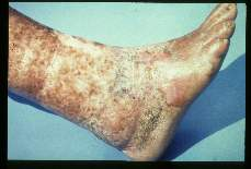 Wuchereria bancrofti. Elephantiasis, desquamation, thinning and hyperkeratosis of skin and left leg of a sixty-six year old male. Patient stated that the use of isopropyl alcohol during attacks caused the desquamation. Case was acquired forty years ago.