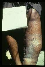 Wuchereria bancrofti. Thirty-year old male. Left leg has moderate elephantiasis, hyperkeratosis, and a medial incision scar from a Thompson operation. The boundary of atrophic and normal skin is sharply marked. There is loss of hair and sweat glands. The skin is rough.