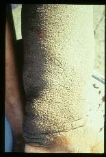 Wuchereria bancrofti. Heavy cobblestone hyperkeratosis and elephantiasis of the left leg of a forty-four year old female. Case was acquired thirty-two years earlier.