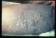 Wuchereria bancrofti. Elephantiasis, hyperkeratosis and nodule like fibrosis on the lower right leg of a sixty-eight year old female. The case was acquired thirty years earlier. Patient claimed cosmetic surgery on this leg thirty years ago, but incision scars could not be identified.