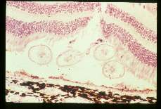 Baylisascaris procyonis. Subretinal larva and outer nuclear layer pyknosis in an experimentally infected cynomolgus monkey.