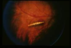 Cueterebra Ocular myiasis produced by a first stage larva o in the posterior eye chamber of a young male in Tampa, Florida.