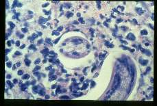 Toxocara canis High power view of a cat liver granuloma with larva surrounded by eosinophils.