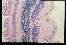 Toxocara canis. Mouse, BALE/c. Experimental infection as in 1955. Eye. At 15 days P1, a coiled larva can be seen within the inner granular layer of the retina. Note the lack of inflammatory response.Hematoxylin-eosin stain.