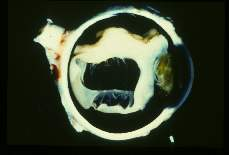 Toxocara canis Retinal detachment in a human eye due to Toxocara canis larvae.