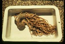 Ascaris lumbricoides. Surgical specimen. Gangrenous bowel removed from patient suffering intestinal obstruction.