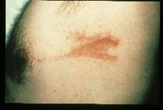 Caterpillar Rash induced by migration of a caterpillar over the skin of a missionary physician in Liberia. The caterpillars usually fall from trees.
