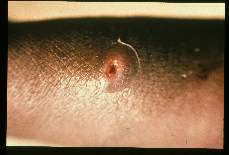 Myiasis. Ulcer from which a maggot was removed. Liberia.
